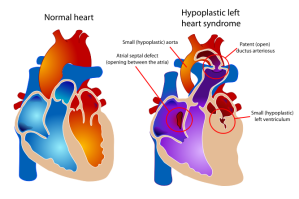 HLHS-and-Normal-Heart