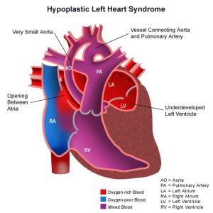 HLHSheart